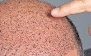 wat zijn de haartransplantatie kosten